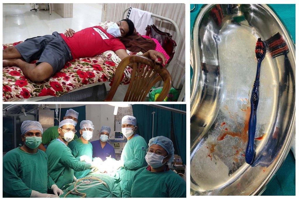मुखबाट छिरेको ब्रसलाई निकाल्न सफल नोबेल अस्पताल